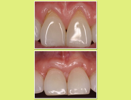 pre operative instructions for dental implants