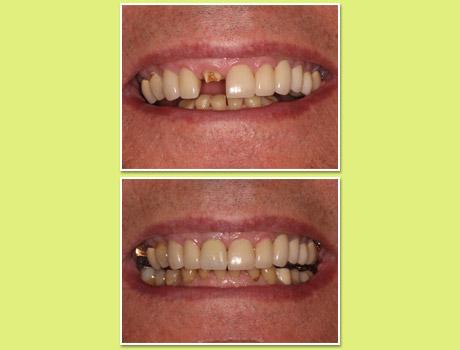 Dental Implants, Tucson, AZ